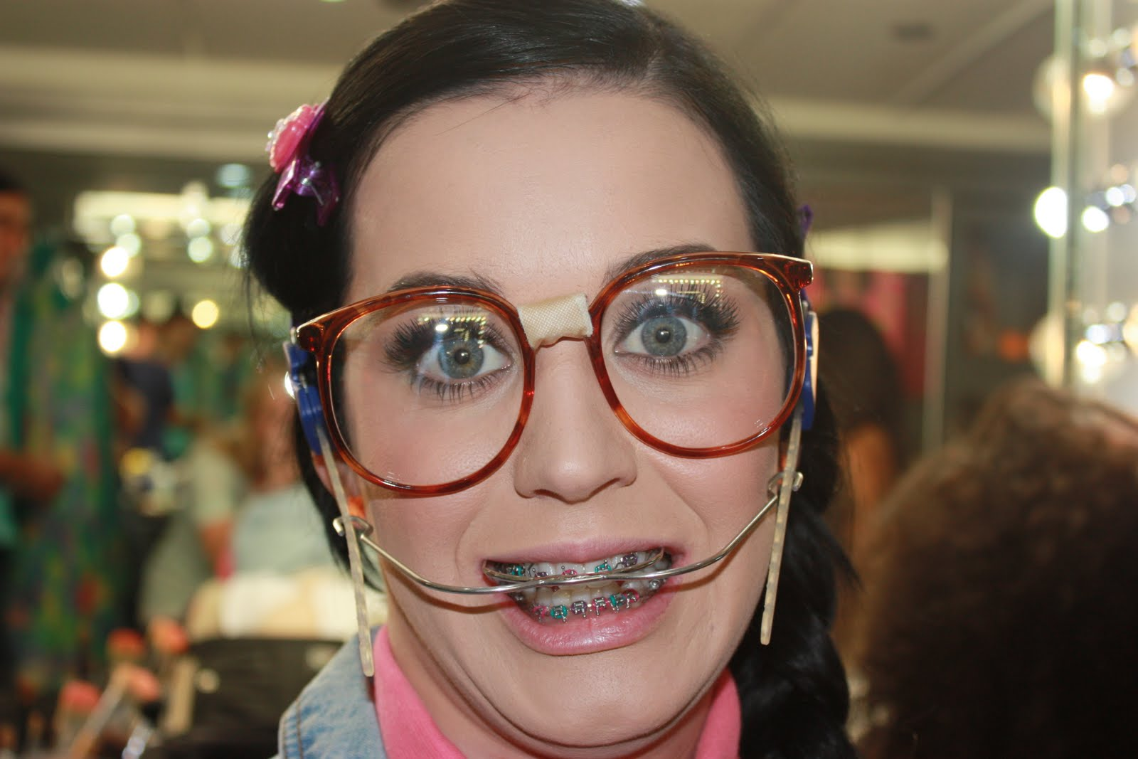Katy Perry wearing braces and headgear
